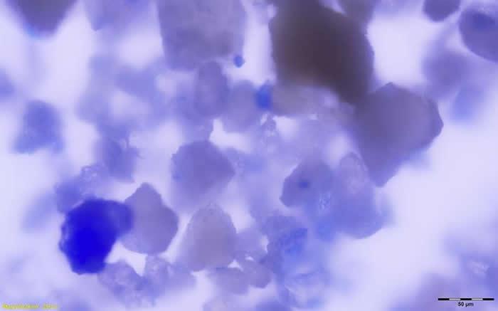 在这位女性口中发现了数千颗青金岩微粒,可能是因为她一直去舔沾着颜料的画笔所造成。 PHOTOGRAPH BY MONICA TROMP