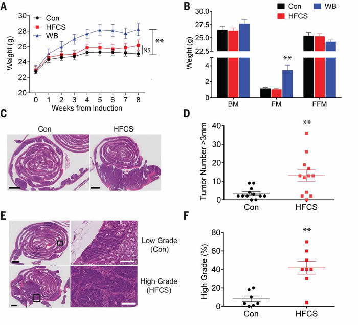 高果糖含量玉米糖浆会增进先已存在的早期结肠直肠癌小鼠肠道内的肿瘤生长