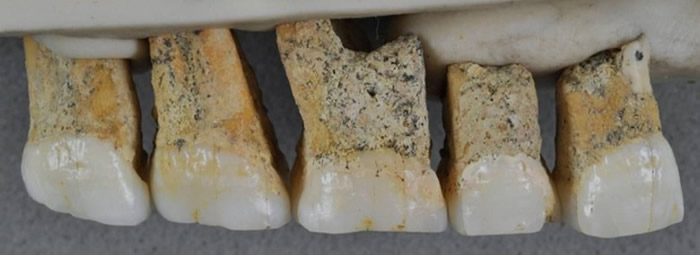 吕宋人的臼齿与前臼齿的比例与其他人种不同。