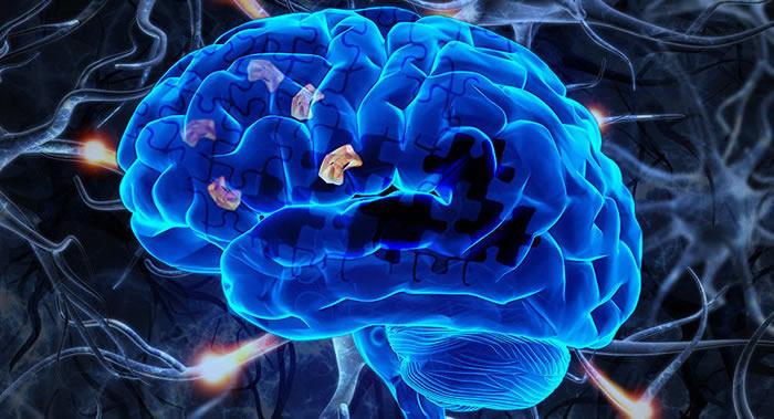 俄罗斯科学家研发可阻止痴呆症恶化的药物