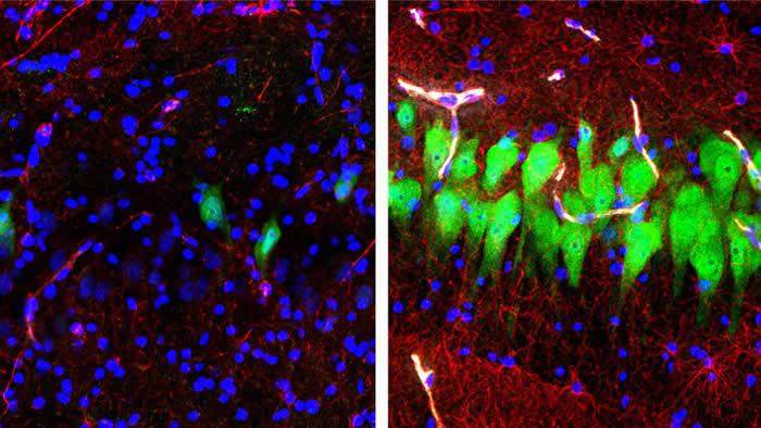 美国耶鲁大学科学家成功复活死亡猪大脑 大脑细胞死亡时间比以往认知的还要久