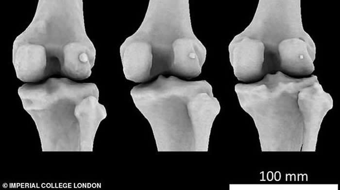 图中显示3个不同膝骨样本存在不同大小的豆骨。科学家发现1918年全球11.2%居民体内存在豆骨,但截至2018年,全球39%居民体内存在豆骨。