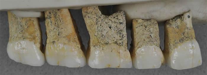 这些化石属于一个全新的人类物种——吕宋人。