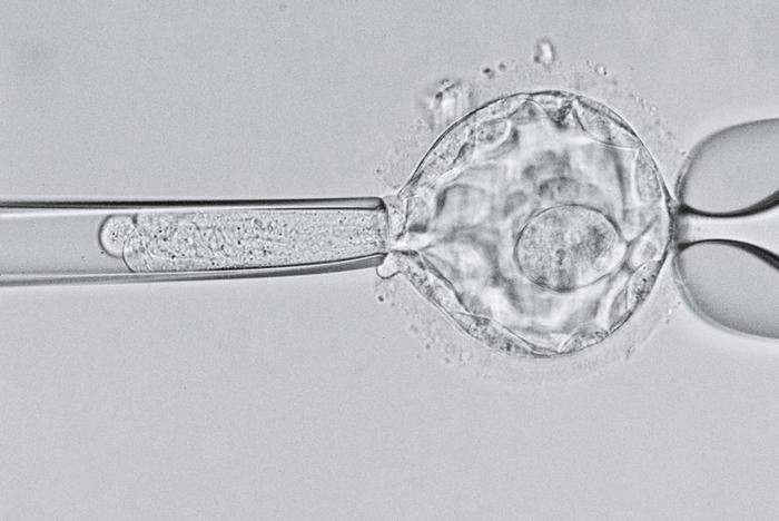 在这幅显微影像中,科学家仔细审视一个五天大的胚囊(blastocyst),寻找囊状纤维化(cystic fibrosis)的基因。 研究人员会运用各种技巧处理疾
