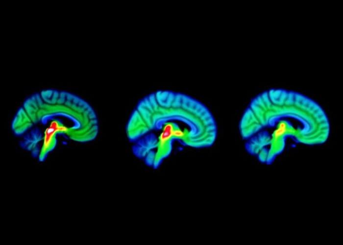 图左至右分别为健康人士、柏金逊症前期患者及已出现病征患者的脑扫描图,可见三者脑内血清素(红色)的差别。(互联网)图左至右分别为健康人士、柏金逊症前期患者及已出现