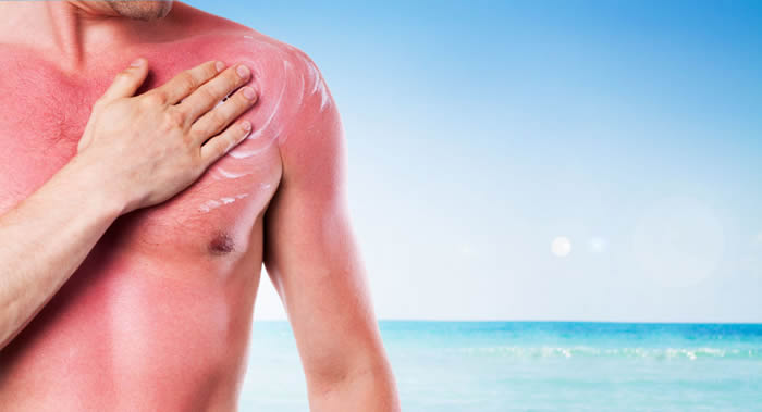 加拿大阿尔伯塔大学皮肤科医生对晒伤时的建议