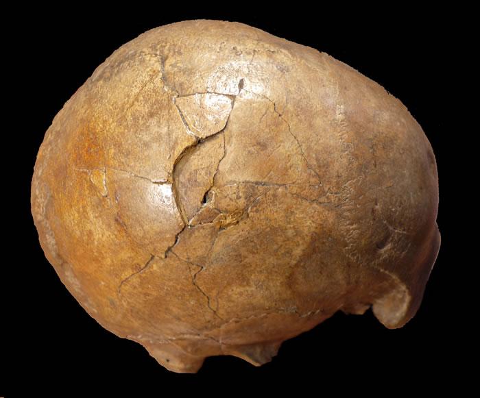 表现出大的凹陷性骨折的Cioclovina颅骨右侧视图