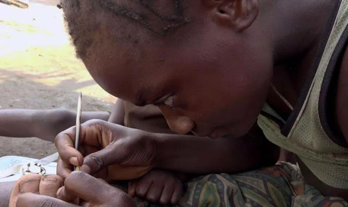 """英国纪录片导演Livia Simoka深入刚果探访俾格米人:9岁""""虫虫女王""""专挖脚底沙蚤"""