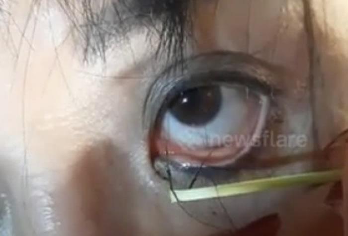 越南高平省女子习惯在溪里洗澡洗衣服 眼睛疼痛拉出数十条黑色寄生虫
