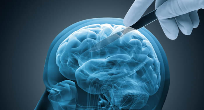 PLoS Medicine期刊:一生积极社交可以降低患痴呆症的风险
