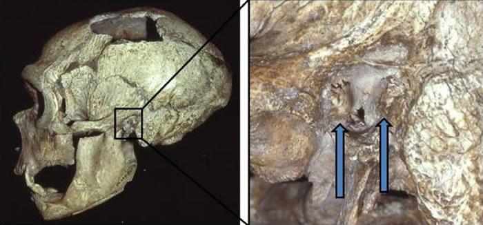 "《PLoS One》:耳道内异常的骨质增生""游泳者耳病""在尼安德特人中非常普遍"