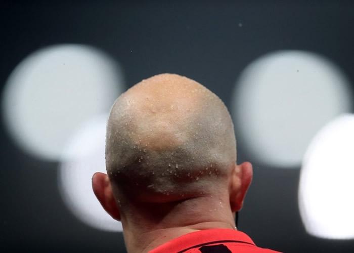 秃头人士喜讯?研究声称韩国泡菜或有助头发增生