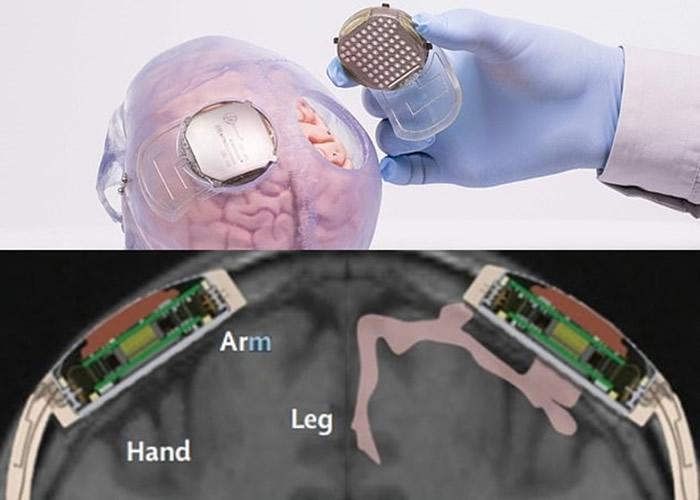 感应器安装在颅骨及大脑之间。