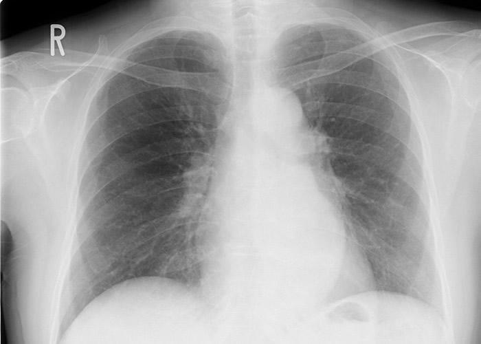 肺癌在多国都是癌症头号杀手。