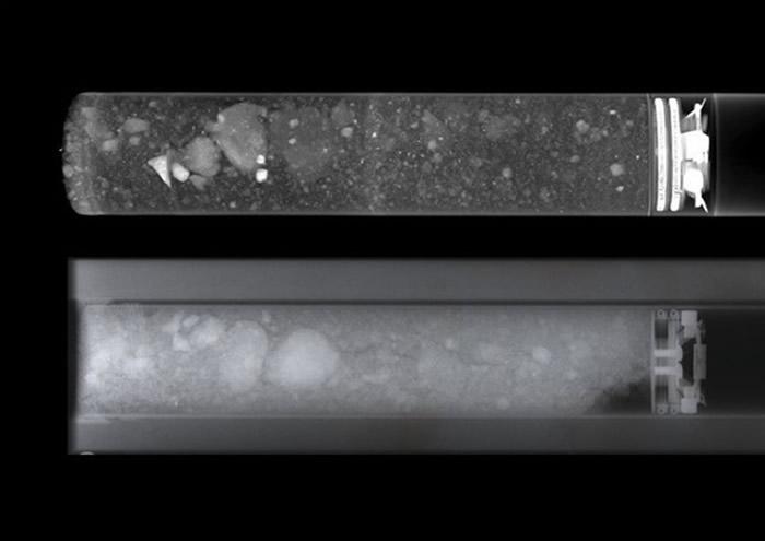 样本经现代技术(上)扫描后,影像明显较旧技术(下)清晰得多。