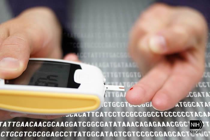 美国加州大学洛杉矶分校科学家研究发现2型糖尿病的潜在诱因