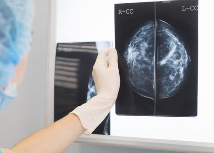 医生要查看及分析X光照,是非常耗时的工作。