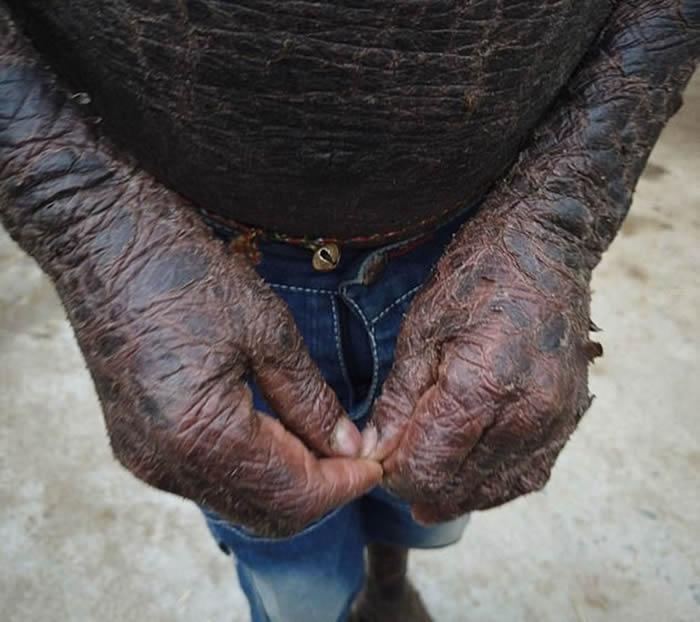 """印度奥里萨邦10岁男孩贾格纳Jagannath因患有罕见""""板层状鱼鳞病""""而被称为""""蛇"""""""