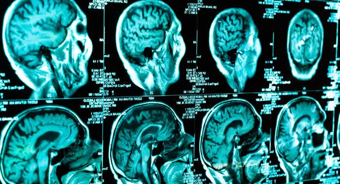 医疗资讯网站Medicalxpress:步行20分钟可改善大脑功能 与早晨喝一杯咖啡相当