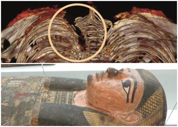 英国北爱尔兰贝尔法斯特阿尔斯特博物馆古埃及木乃伊扫描显示贵族妇人或被刀刺杀死亡