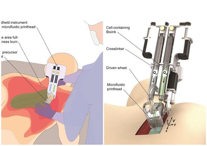 """加拿大新型手持式3D皮肤打印机 可直接在伤口""""打印""""新皮肤细胞以治疗严重烧伤"""