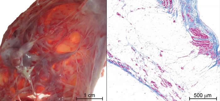 追踪沉默杀手:发现心律失常性心肌病的新代谢性生物标志物