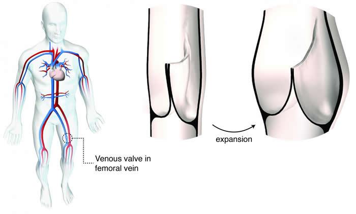 科学家创造一种具适应能力的心瓣膜置换术 可随着时间推移随心脏的生长而扩展