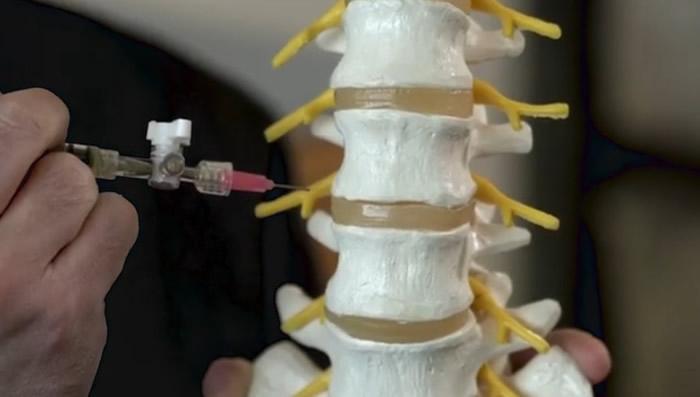 新凝胶注入技术在绵羊身上测试后,效果良好。