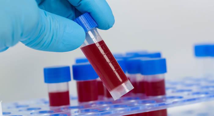 《自然》杂志:血红蛋白这种运输氧气的蛋白质产生于发生在数百万年前的两次突变
