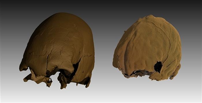 有意识的颅骨改形行为导致松花江人颅骨(左)和脑(右)严重变形。倪喜军研究团队 供图