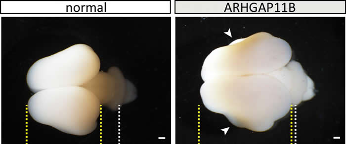 """首次确认人类特有的""""聪明基因""""ARHGAP11B 进化过程中与其它灵长类区分的重要机制"""