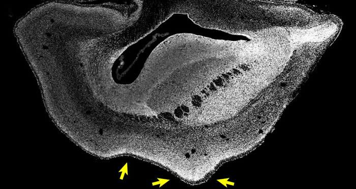 101日龄普通狨猴胎儿的大脑切片(Credit : Heide et al. / MPI-CBG)