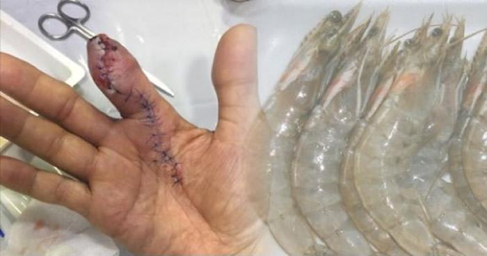 """处理海鲜要做好防护措施!新加坡男子洗虾被刺伤 染上致命""""食肉菌""""手指遭截肢"""