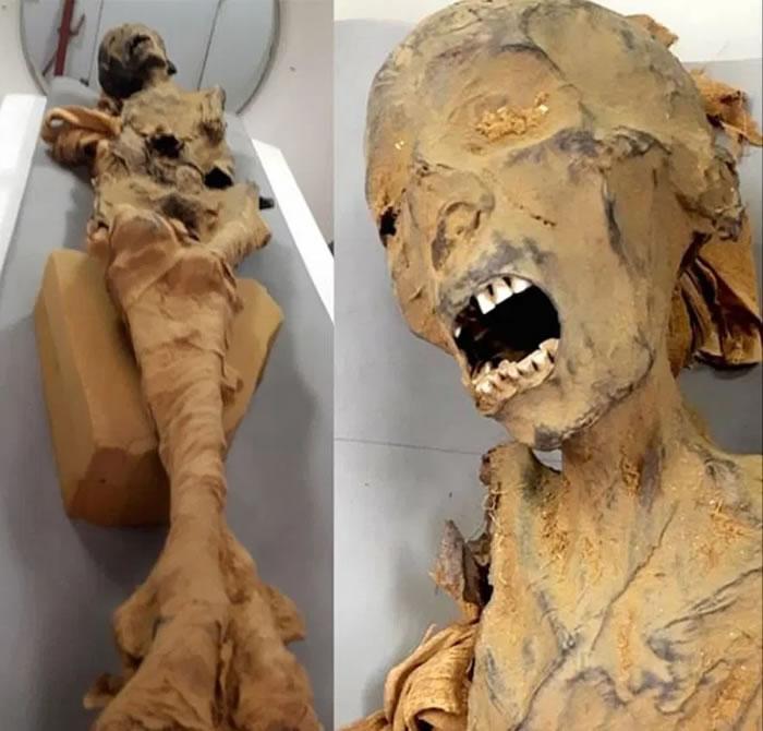 """埃及1881年发现的代尔埃尔巴哈里皇家墓穴中3000年前""""尖叫女人木乃伊""""死于心脏病发"""