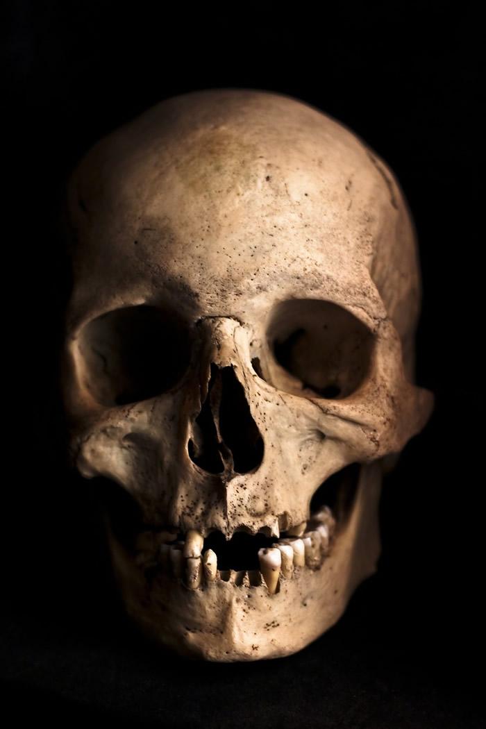 西班牙Dehesilla洞穴中发现生前曾接受过脑部手术的古代人类头骨