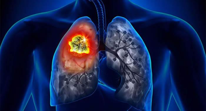 肺癌的最初症状常常与呼吸系统无关 常被误认为是肺炎或慢性支气管炎