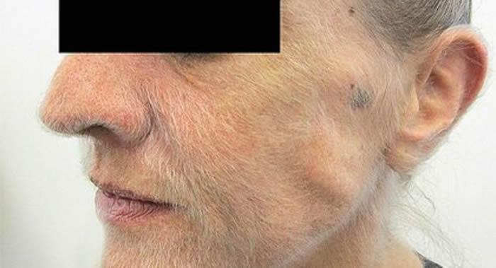 澳大利亚维克多利亚州墨尔本市一名女性吸烟者因肺癌脸上长满了毛发