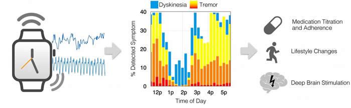 科学家研发基于市售智能手表的监测系统MM4PD 能察觉到帕金森氏病患者的运动和震颤