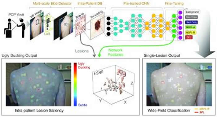 """分析照片的神经网络系统或可帮助临床医生寻找""""丑小鸭""""癌前皮肤病变"""