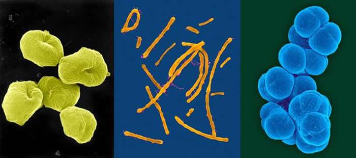 科学家正在研究嗜酸热硫化叶菌(图左)、富盐菌(图中)、甲烷八叠球菌(图右)这样的古生菌如何生长和分裂的,从而阐明复杂细胞的进化历程